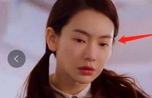 戚薇承认割双眼皮 但割的有点失败