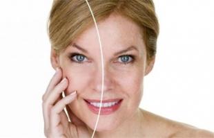 光子嫩肤没做好对皮肤有害?本身属于破坏性治疗