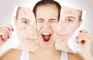 鼻子周围为什么容易出油?如何科学地去除鼻子上的黑头?