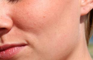 冬季干燥脸上也容易长痘?你需要这样护理!
