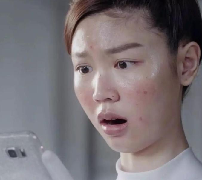 脸部为什么经常出油,是皮肤缺水的表现吗?