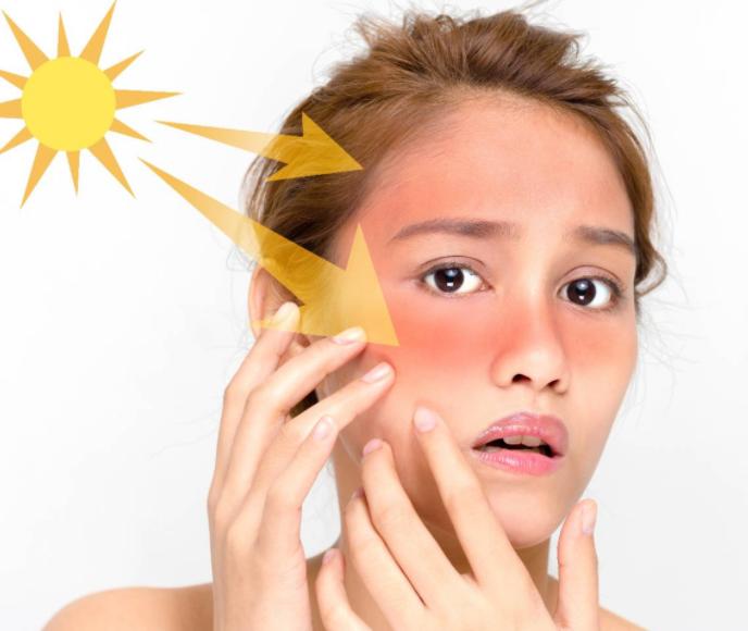 夏季皮肤干燥怎么办?夏季护肤小常识