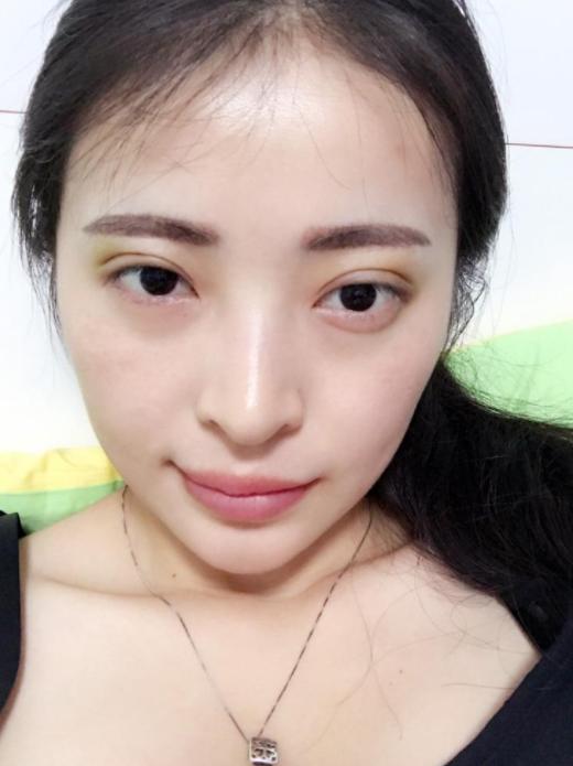 割双眼皮和埋线是一个意思吗?双眼皮埋线能维持多久?