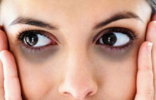 熬夜熬出�F黑眼圈怎么�k?如何消退黑眼圈?